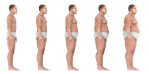 Progressionto-Obesityjpg